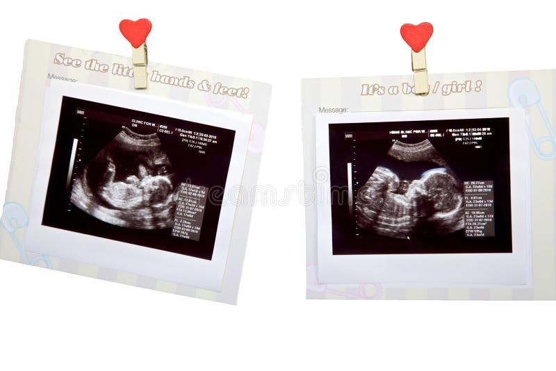 De ultrasone klank van de baby stock foto