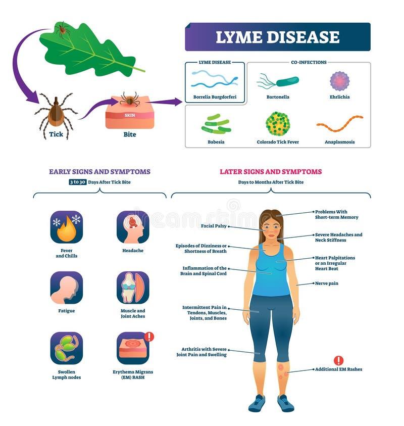 De vectorillustratie van de Lymeziekte De geëtiketteerde lijst van de besmettingssymptomen van de tikbeet vector illustratie