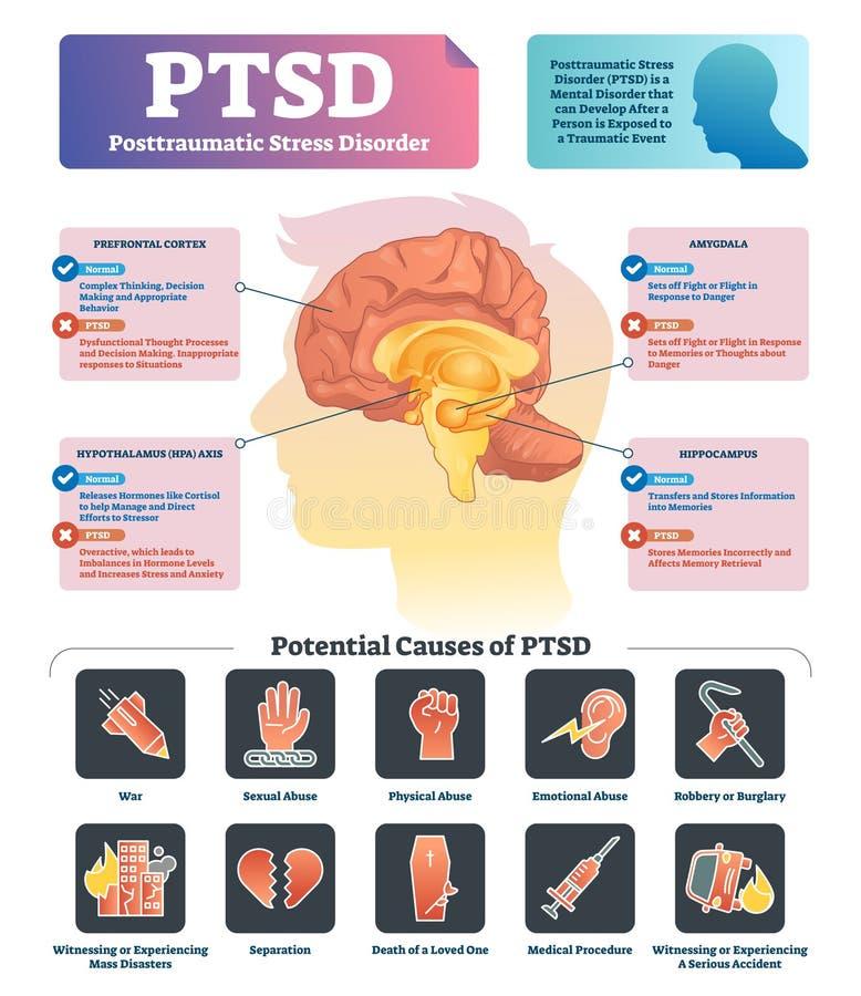 De vectorillustratie van PTSD De geëtiketteerde anatomische geestelijke wanorde veroorzaakt regeling vector illustratie