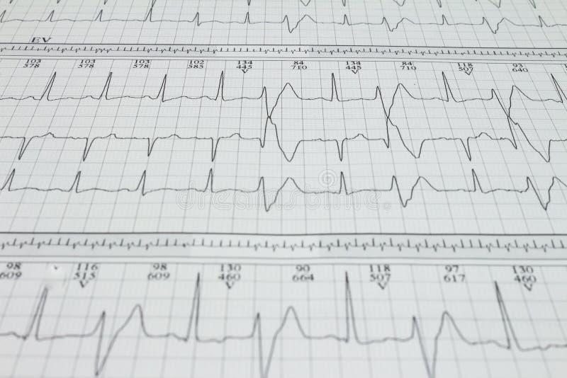 De ventriculaire Hartaritmie van extrasystolebigeminism die op een elektrocardiogram wordt geregistreerd stock afbeelding