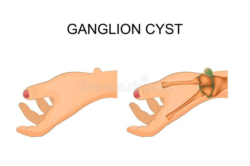 De verbinding van de Hygromapols royalty-vrije illustratie