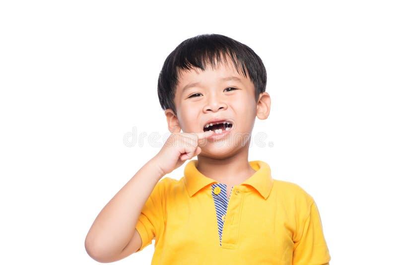 De verloren melktand Aziatische jongen, sluit omhoog mening stock afbeeldingen