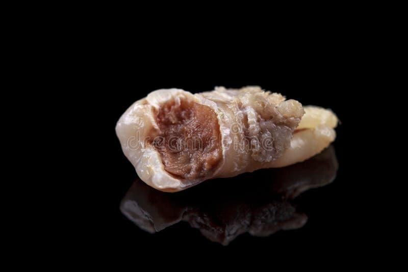 De verre tand wordt beschadigd door bederf op een zwarte achtergrond Macro royalty-vrije stock foto's