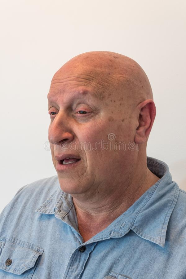 De verwarde oudere mens die kaal is, heeft alopecia, chemotherapie, kanker, op wit royalty-vrije stock fotografie