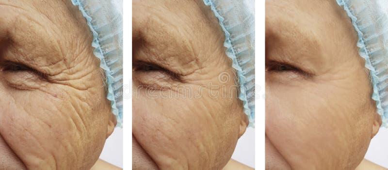 de verwijdering van bejaarden` s rimpels op het gezicht voordien na de procedures stock afbeelding