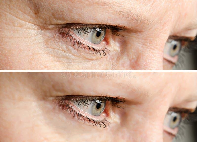 De verwijdering van gezichtsrimpels