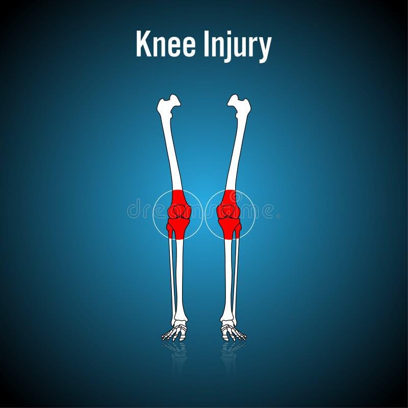 De Verwonding van de knie vector illustratie