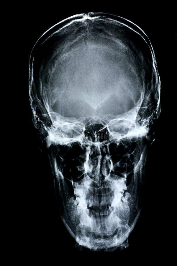 De voorzijde van de röntgenstraal/van het Gezicht royalty-vrije stock afbeeldingen