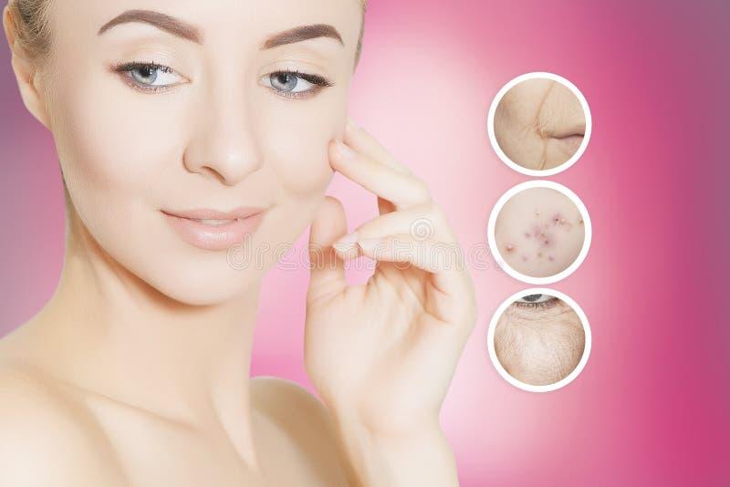 kleimasker acne