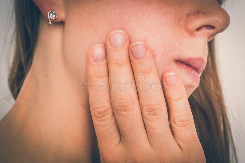 De vrouw met een pijnlijke uitdrukking heeft tandpijn royalty-vrije stock foto's