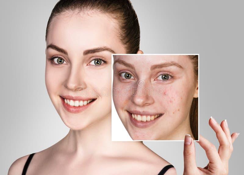 De vrouw toont foto met slechte huid vóór behandeling royalty-vrije stock afbeelding