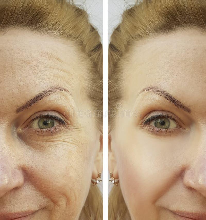 De vrouw van de gezichtsrimpel before and after correctie royalty-vrije stock foto