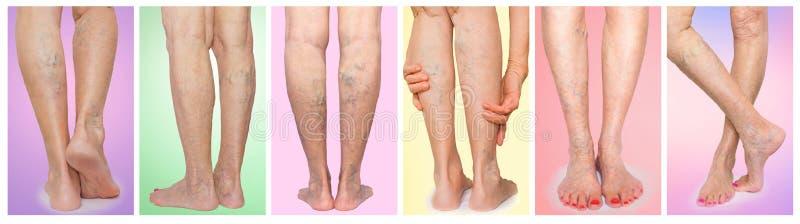 De vrouwelijke benen met aders varikeuze spin collage stock foto's