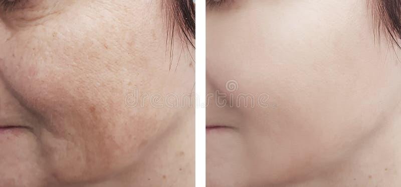 De vrouwelijke oogrimpels patien effect t procedure voordien na de behandelingenkosmetiek royalty-vrije stock afbeelding