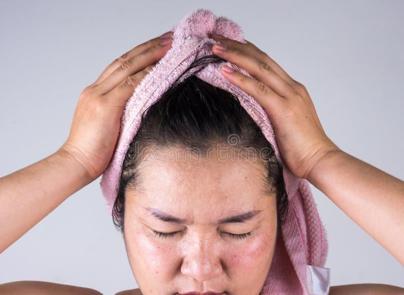 De vrouwen met de problemen van het haarverlies tonen sommige haarproblemen royalty-vrije stock afbeeldingen