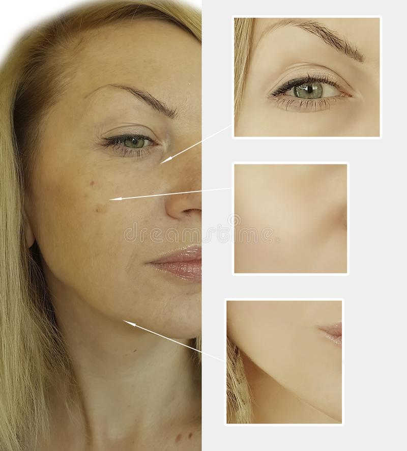 De vrouwenrimpels zien voordien na collageen het opheffen van de de correctievouw van de chirurgiebehandeling de lifttherapie g o stock foto