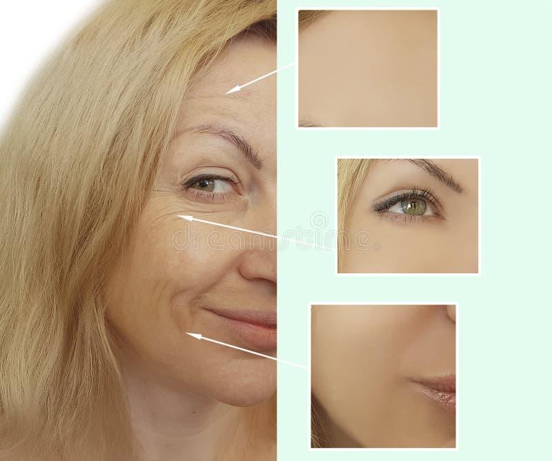 De vrouwenrimpels zien voordien na collageenchirurgie de geduldige het opheffen van de de correctievouw van de chirurgiebehandeli stock fotografie