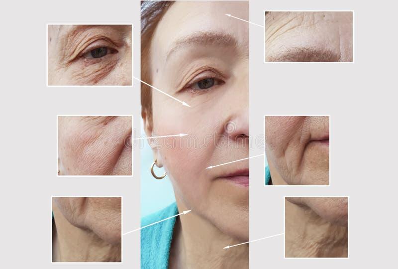 De vrouwenrimpels zien voordien na collageenchirurgie de geduldige het opheffen van de de correctievouw van de chirurgiebehandeli royalty-vrije stock fotografie