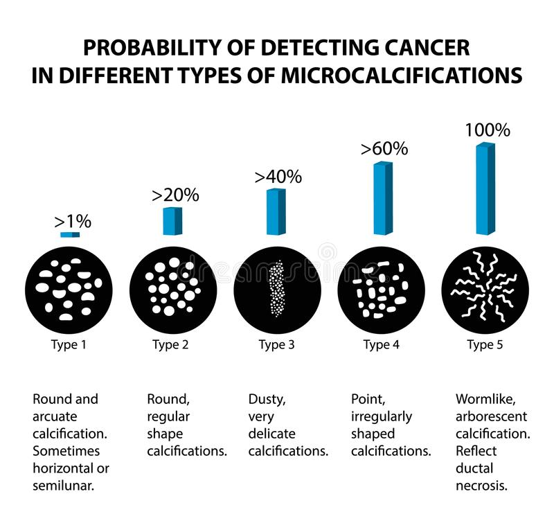 De waarschijnlijkheid van het ontdekken van borstkanker met verschillende types van microcalcinates mammography Infographics royalty-vrije illustratie