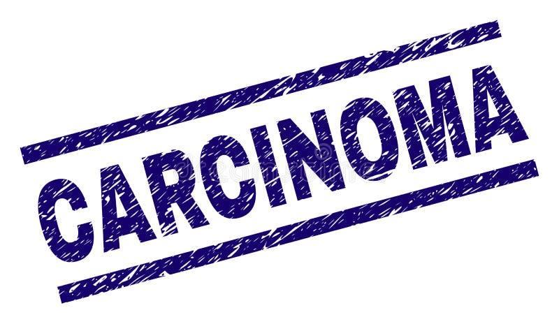 De Zegelverbinding van het Grunge Geweven CARCINOOM stock illustratie