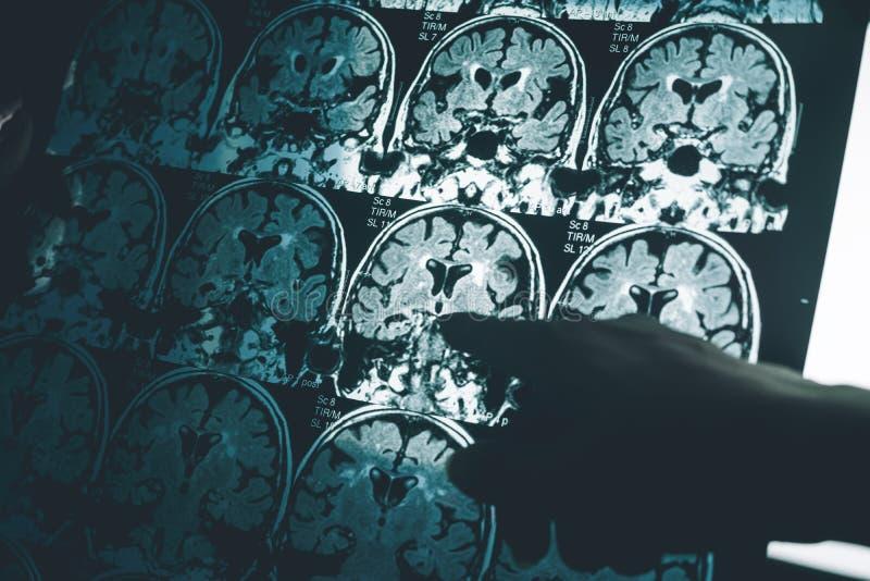 De ziekte van Alzheimer ` s op MRI stock afbeelding