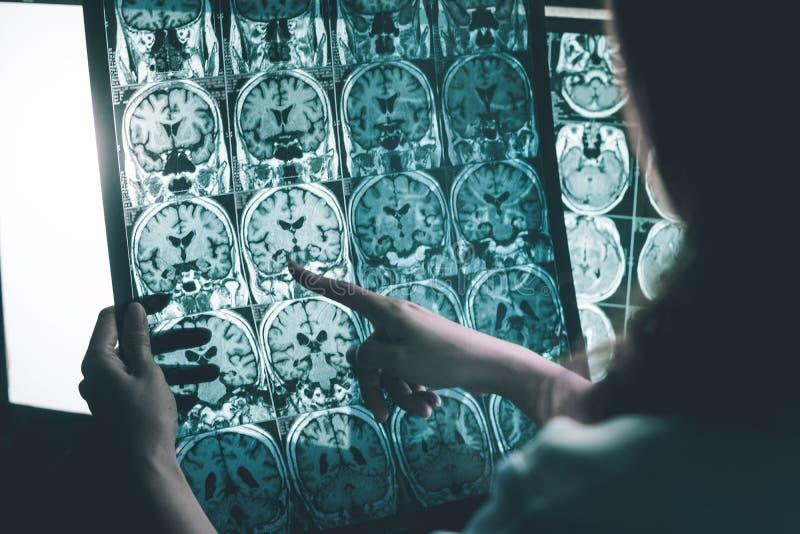 De ziekte van Alzheimer ` s op MRI royalty-vrije stock fotografie