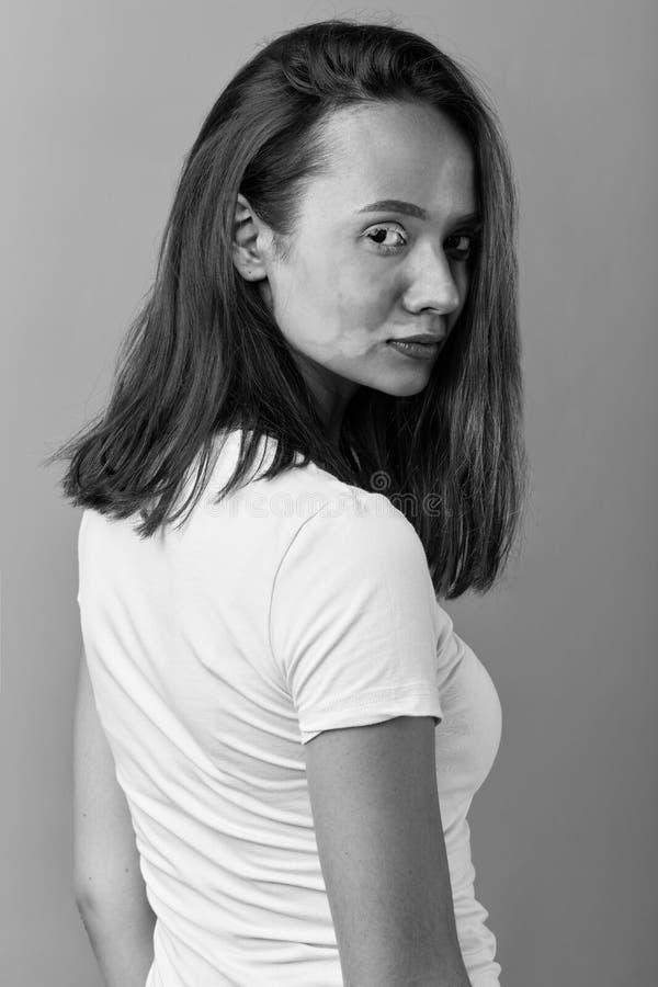 De Zwart-witte foto van Peking, China het meisje heeft huid die pigmentvlekken ontwikkelt royalty-vrije stock foto