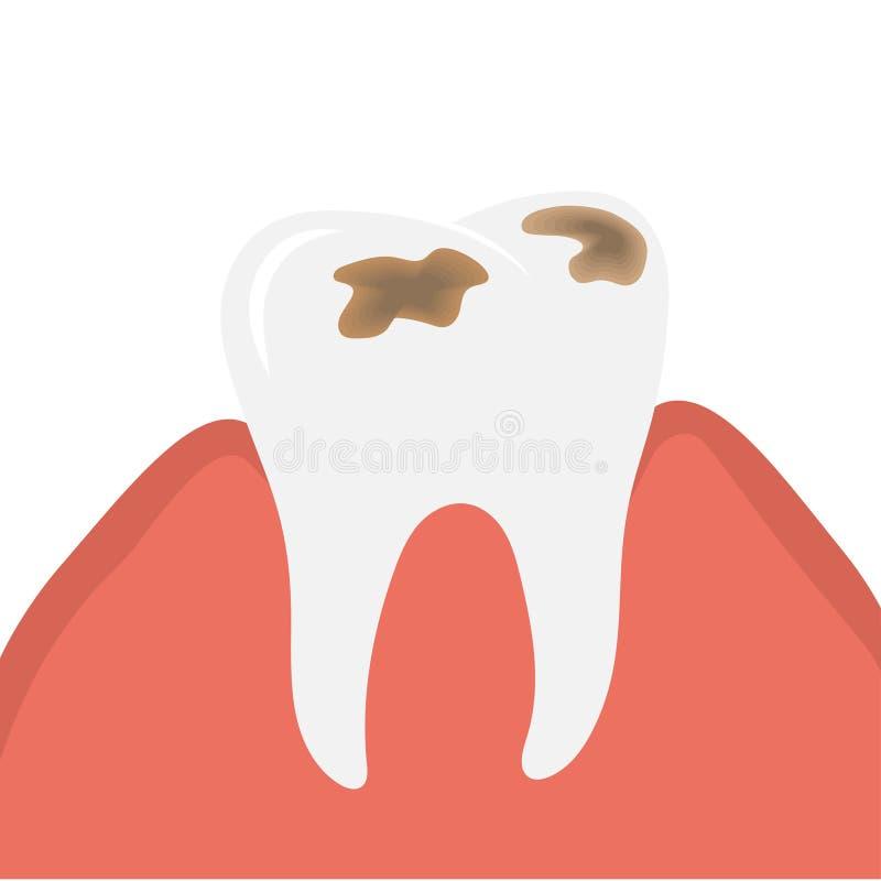 Decaiga y destruya el diente o la carie dental ilustración del vector