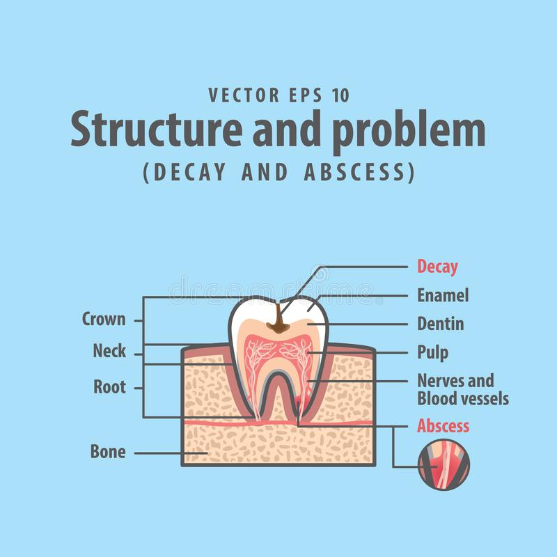 Decay and abscess cross-section structure inside tooth stock illustration