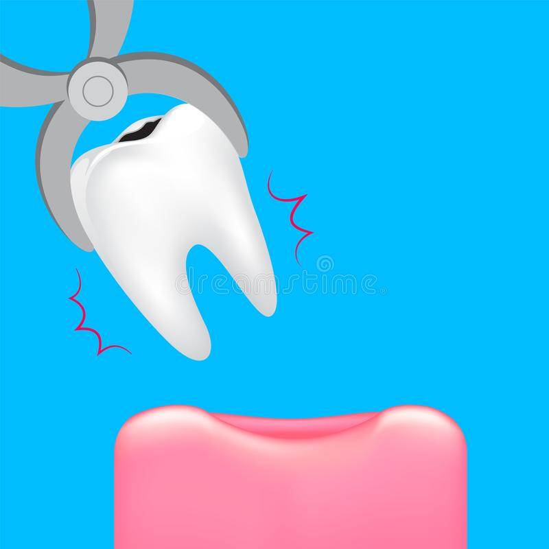 Decay tooth removal. stock illustration