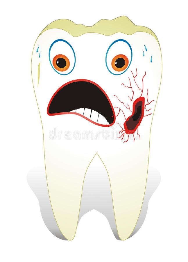Decayed Molar Tooth vector illustration