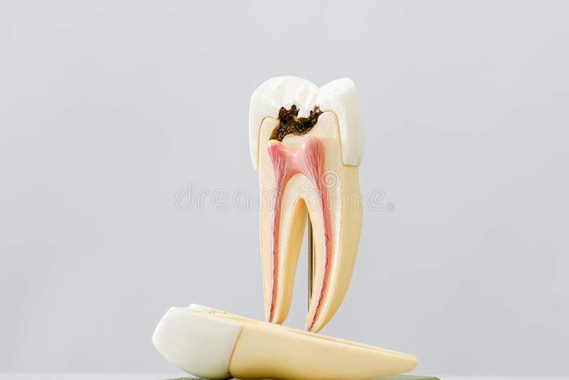 Decayed tooth model. With white background stock photography