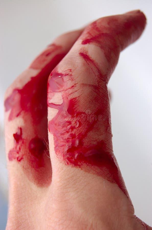 Dedos & sangue imagens de stock royalty free