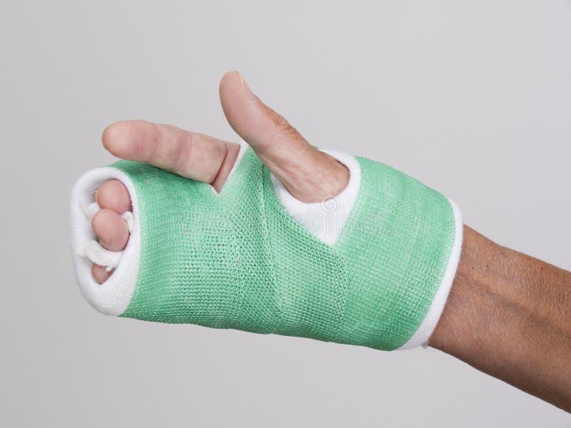 Dedos de la mano derecha en molde del verde imagen de archivo