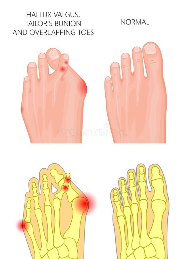 Dedos del pie traslapados ilustración del vector