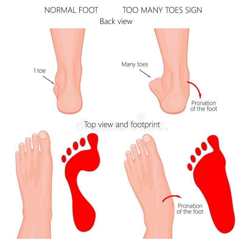 Dedos do pé demais ilustração royalty free