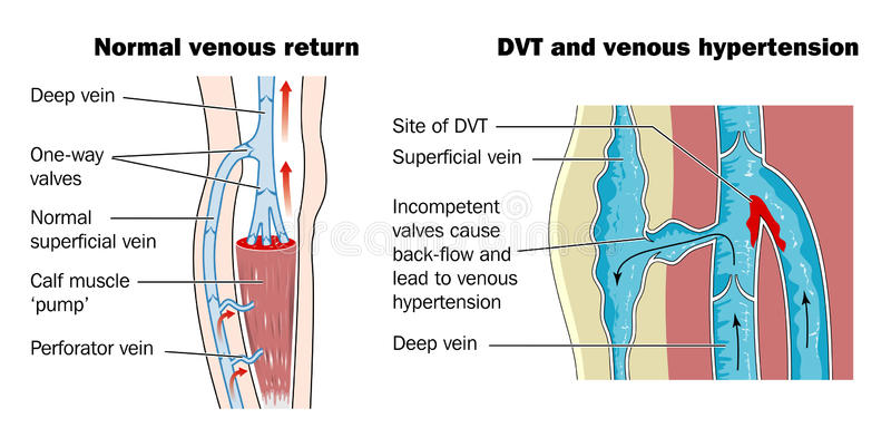 Deep vein thrombosis stock illustration