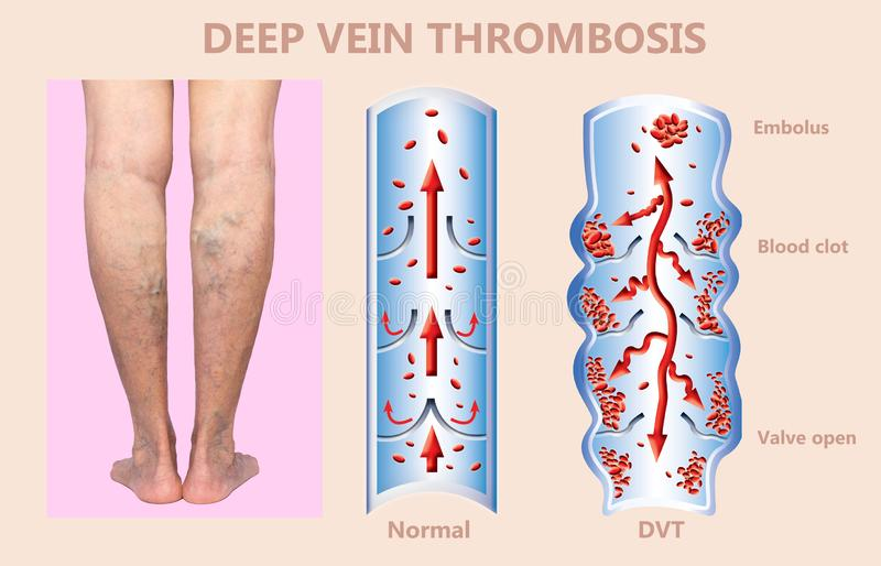 Deep Vein Thrombosis or Blood Clots. Embolus. Structure of normal and varicose femalr veins vector illustration