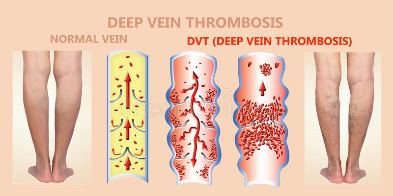 Deep Vein Thrombosis or Blood Clots. Embolus. vector illustration