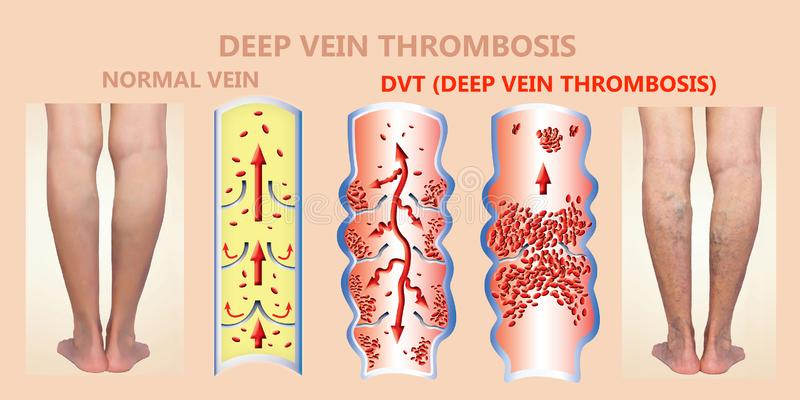 Deep Vein Thrombosis or Blood Clots. Embolus. Structure of normal and varicose female veins stock photos
