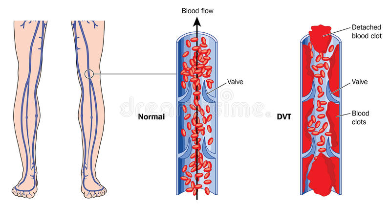 Deep vein thrombosis. Drawing showing deep vein thrombosis in leg veins. Created in Adobe Illustrator. EPS 10 stock illustration