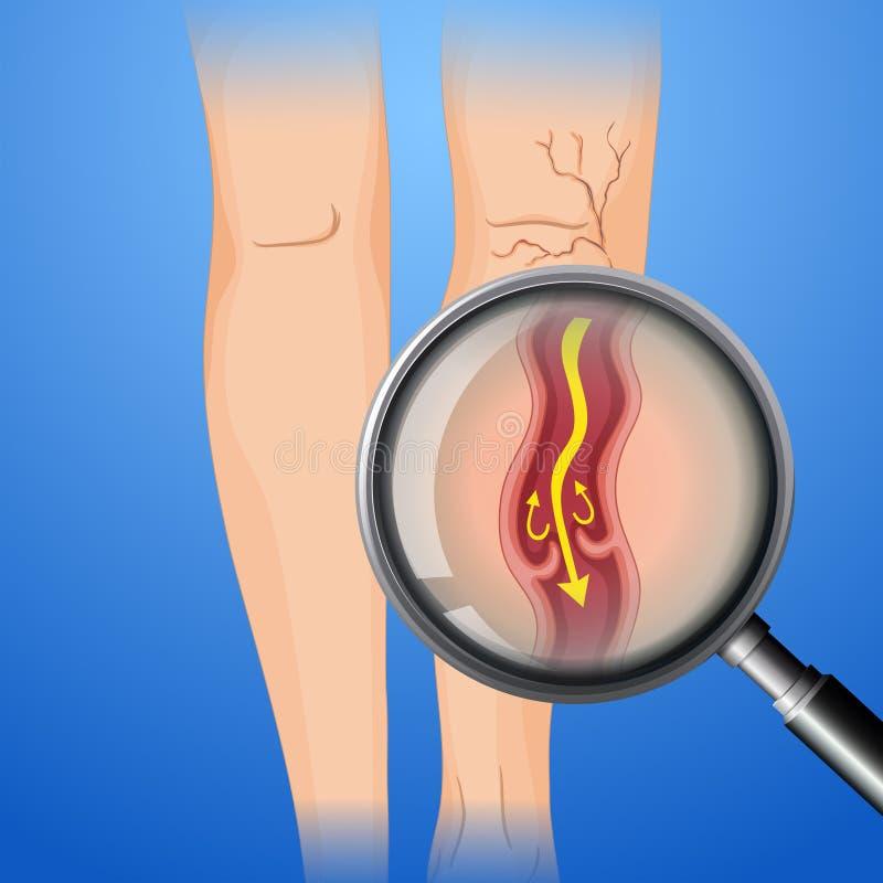 Deep Vein Thrombosis on Leg. Illustration vector illustration