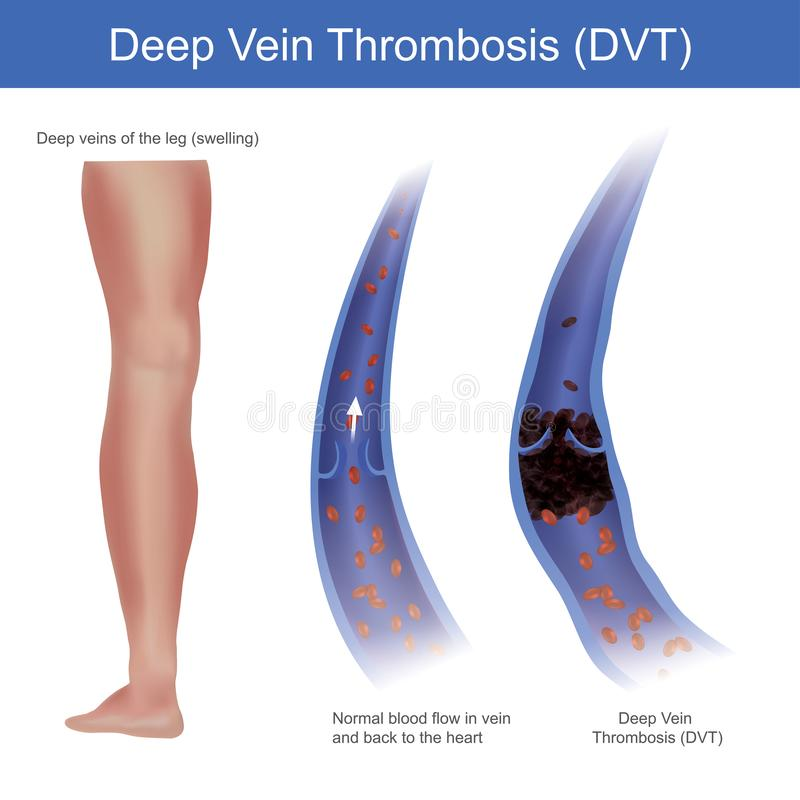 Deep vein thrombosis. In normal conditions red blood cell flow in vein and back to the heart, but the Deep Vein Thrombosis royalty free illustration