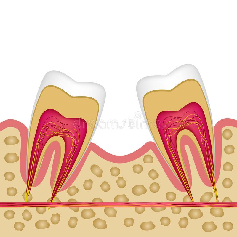 Defect of the missing tooth and the need to install an implant. royalty free stock image
