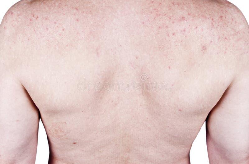 Defectos de los problemas de pieles del acné del varón adulto, erupción fotografía de archivo