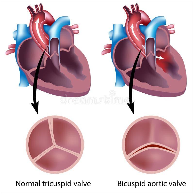 Defeito de válvula do coração ilustração royalty free