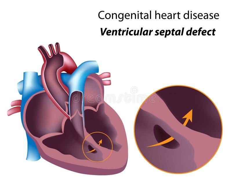 Defeito septal ventricular ilustração royalty free