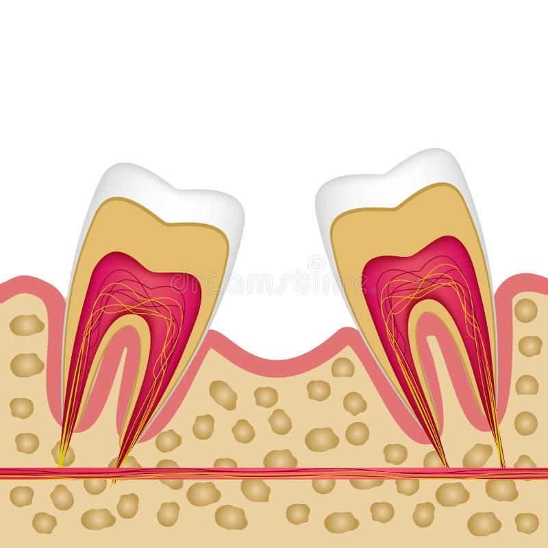 Defekt av den saknade tanden och behovet för att installera en implantat stock illustrationer