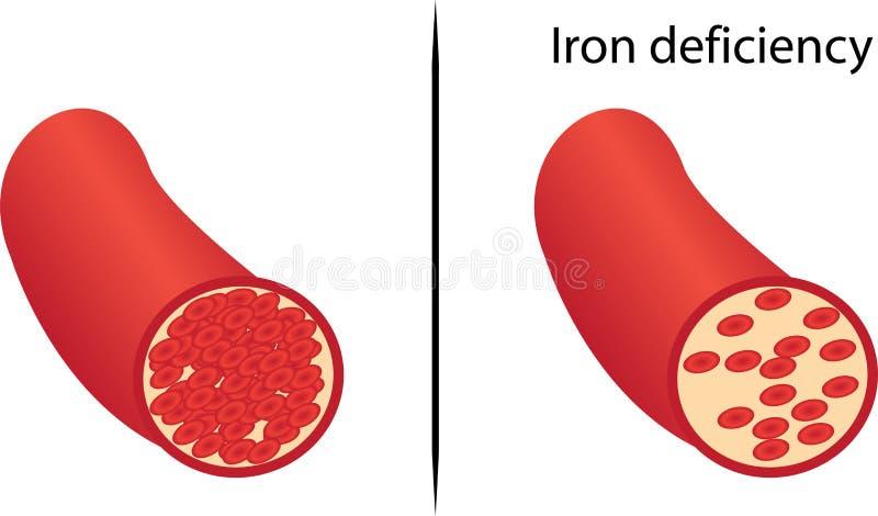 Deficiencia de hierro crónico piel amarilla stock de ilustración