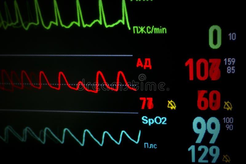 Defienda el monitor médico en dinámico. imagenes de archivo